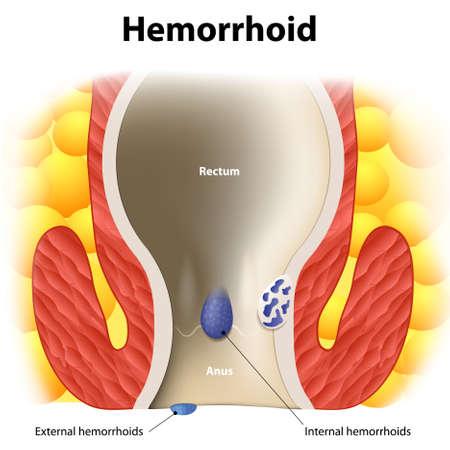 항문 해부학 다이어그램. 내부 및 외부 치질. 인간의 해부학
