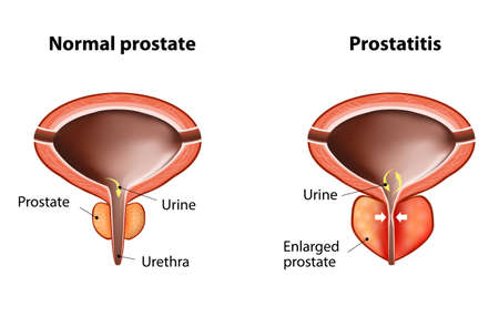 malignant growth: normal prostate and acute prostatitis. Medical illustration Illustration