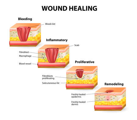 fibroblast: Phases of the wound healing process. Hemostasis, Inflammatory, Proliferative, Maturation and remodeling phase