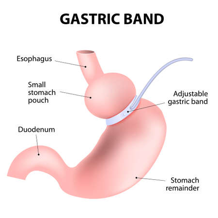 laparoscopic adjustable gastric band. lap-band, a band, or LAGB. Vector illustration Illustration