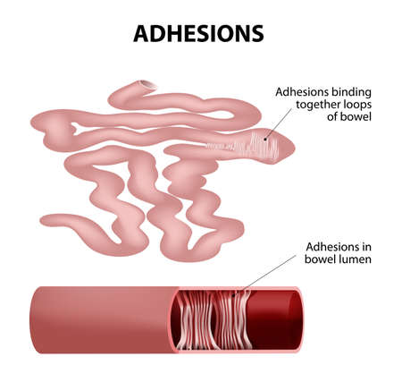 adhesion: Adhesions.Human small intestine. Adhesions are scar tissue that forms between two organs that are not normally connected to each other. part of small intestine taken out.