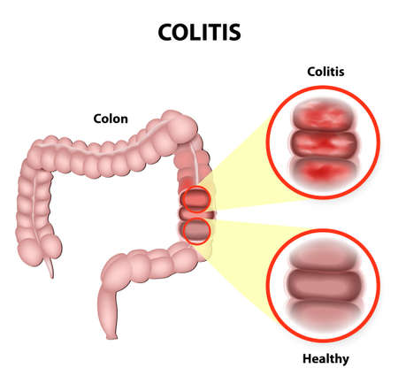Ulcerative colitis is a chronic disease that results in inflammation of the colons innermost layer. Vector