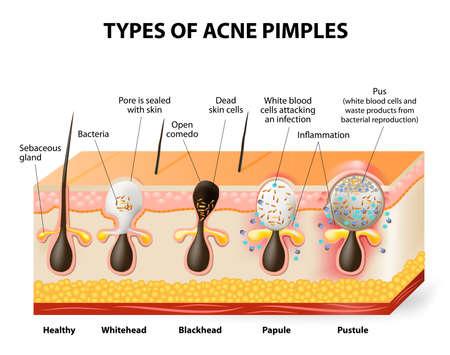 anatomie humaine: Types de boutons d'acn�. Une peau saine, blancs et noirs, papules et pustules