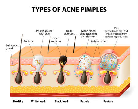 skin problem: Types of acne pimples. Healthy skin, Whiteheads and Blackheads, Papules and Pustules Illustration
