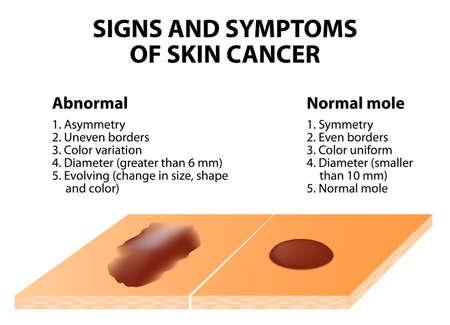 Anzeichen und Symptome von Hautkrebs. ABCDE-Richtlinie - eine einfache und einfache Möglichkeit, die Haut auf verdächtige Wucherungen zu überprüfen. Standard-Bild - 36130536