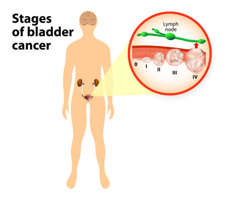 Bladder Cancer on the silhouette of a men. stages of bladder cancer Illustration