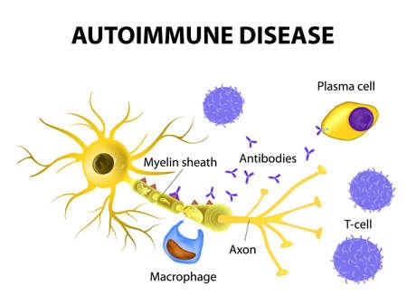 cellule nervose: Malattia autoimmune. Sclerosi multipla - cellule immunitarie attaccano la guaina mielinica che avvolge le cellule nervose. Anticorpi avviare lesioni della mielina (attivazione dei macrofagi). Vettoriali