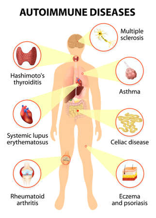 sintoma: Os tecidos do corpo humano afectado por ataque auto-imune. Doenças e órgãos em silhueta homem