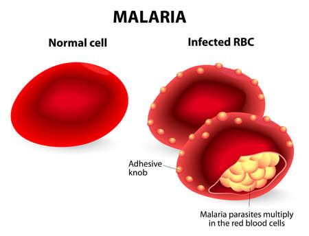 Malaria. Los glóbulos rojos normales e infectados. La malaria es una enfermedad causada por un parásito llamado Plasmodium que se transmite a los humanos por la picadura de un mosquito infectado