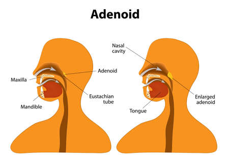 Adenoid. Side view to show the position of the adenoids. The adenoids are glands found at the back of the throat. The tonsils and adenoids form a ring of tissue that helps to fight infection.