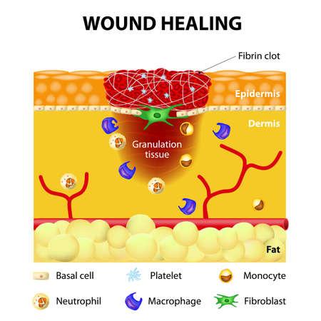治癒: 創傷治癒過程。皮膚損傷後の傷
