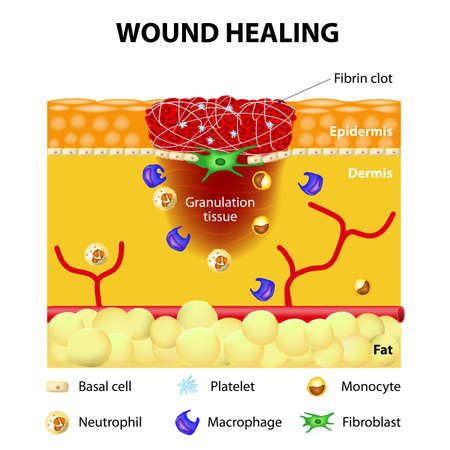 inflammatory: The wound healing process. Cutaneous wound after injury