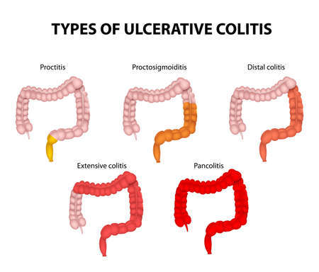Types of Ulcerative Colitis. The diagram shows the types of UC, from the proctitis, (involving just the rectum), to the pancolitis, (involving the entire colon).