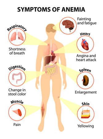digestive anatomy: Main sign and symptoms that may appear in anemia