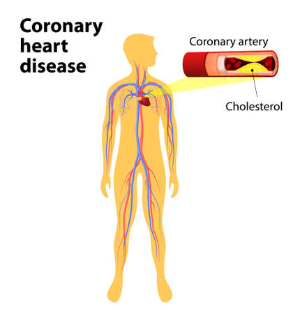 heart valves: Coronary heart disease is a condition in which the hearts arteries become narrower. coronary artery disease. human vascular system on silhouettes of men. Cholesterol plaque in artery. Illustration with annotation