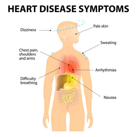 chest pain: Heart Disease. Signs and Symptoms. Coronary artery disease (CAD), or ischemic heart disease (IHD). Also known as Atherosclerotic heart disease or atherosclerotic cardiovascular disease and coronary heart disease