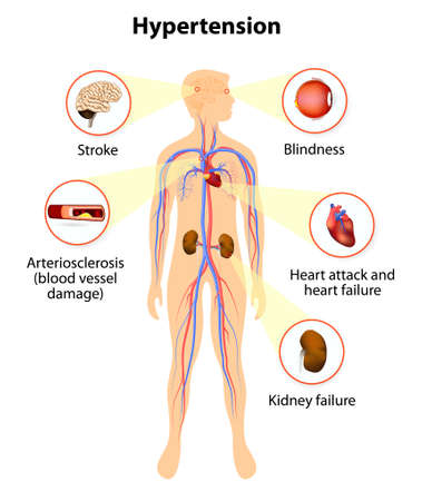 ataque al corazón: daño de la presión arterial alta. hipertensión aumenta el riesgo de ataque cardíaco, accidente cerebrovascular e insuficiencia renal. Vectores