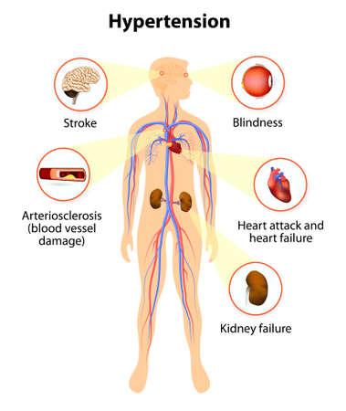 les dommages causés par une pression artérielle élevée. l'hypertension augmente le risque de crise cardiaque, d'AVC et insuffisance rénale.