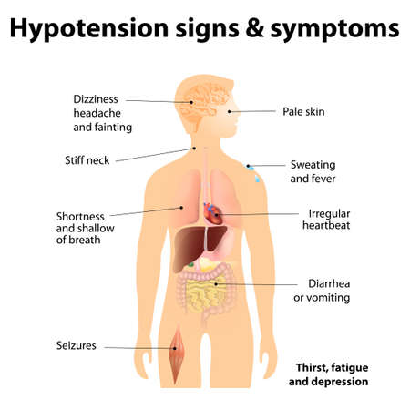 systolic: Hypotension signs & symptoms. Low blood pressure symptoms