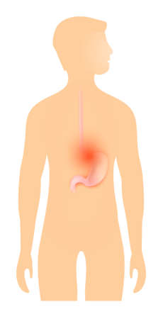 Acid reflux from stomach. Heartburn and Gastroesophageal Reflux Disease (GERD). Stomach highlighted on the silhouette of a human. Stomach disease Vector