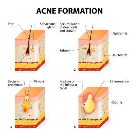 Formation de l'acné de la peau ou de Pimple. Le sébum dans les pores obstrués favorise la croissance de certaines bactéries appelées un Propionibacterium acnes. Cela conduit à la rougeur et une inflammation associée à des boutons. Vecteurs