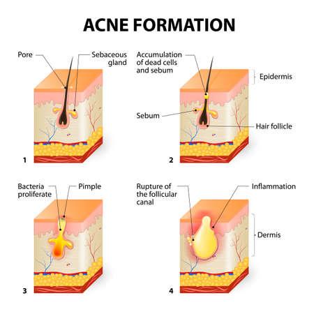 Vorming van de huid acne of puistje. De talg in de verstopte poriën bevordert de groei van een bepaalde bacterie Propionibacterium acnes. Dit leidt tot de roodheid en ontsteking geassocieerd met puistjes. Vector Illustratie