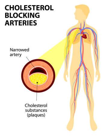 the human heart: Anatom�a de un ataque al coraz�n. Diagrama de un infarto de miocardio. La placa ateroscler�tica en una arteria coronaria. Trombo que ocluye totalmente la arteria y la prevenci�n de la sangre.