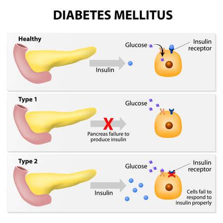 trzustka: Główne rodzaje cukrzycy. Albo trzustka nie produkuje wystarczającej ilości insuliny lub komórki ciała nie reaguje prawidłowo na insuliny produkowanej Ilustracja