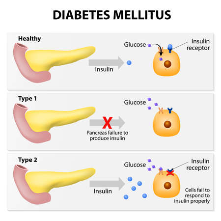 either: Main types of diabetes mellitus. Either the pancreas not producing enough insulin or the cells of the body not responding properly to the insulin produced