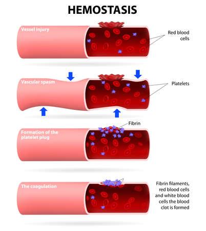 Basisstappen in hemostase Stock Illustratie