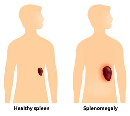 anatomie humaine: La spl�nom�galie est un agrandissement de la rate