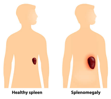 human anatomy: Splenomegaly is an enlargement of the spleen