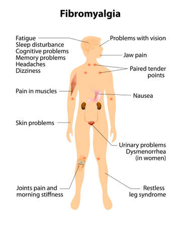 skin problem: signs and symptoms of fibromyalgia. Human silhouette with internal organs. Vector illustration