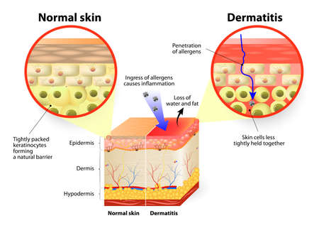 human body: Skin showing changes due to dermatitis. labeled Illustration