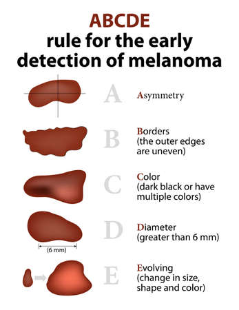 ABCDE Rule for the early detection of Melanoma  イラスト・ベクター素材