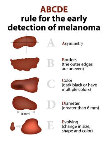 ABCDE regel voor de vroege opsporing van melanoom