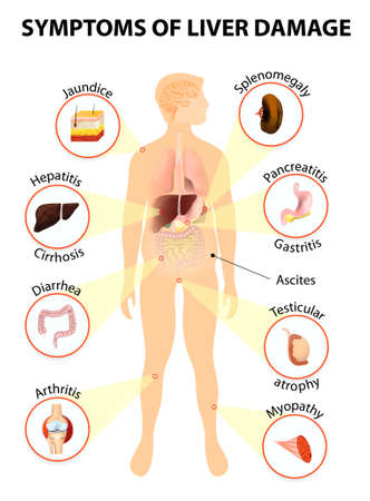 liver cirrhosis: Symptoms of liver damage. Human silhouette with internal organs.  Illustration
