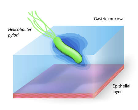 mucus: helicobacter pylori - Ulcer-causing bacterium Illustration