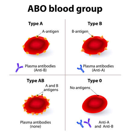 transfusion: ABO Blood groups. There are four basic blood types, made up from combinations of the type A and type B antigens.