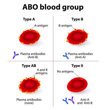 red blood cell: Los grupos sanguíneos ABO. Existen cuatro tipos de sangre básicos, compuestos de combinaciones de los antígenos de tipo A y tipo B.