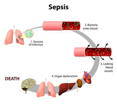 Sepsis or septicaemia is a life-threatening illness. Presence of numerous bacteria in the blood, causes the body to respond in organ dysfunction. Effects of sepsis Vettoriali