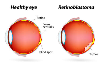retina: Retinoblastoma tumor that form on the retina. Eye disease. Healthy eye and Retinoblastoma.