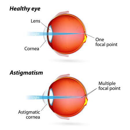 cornea: Astigmatism. Eye disease. Healthy eye and Astigmatic eye