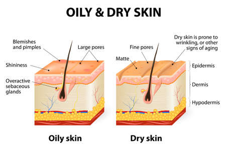 dries: Oily & dry skin. Different. Human Skin types and conditions. A diagrammatic sectional view of the skin. Illustration