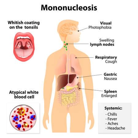 mononucleosis. Signos y síntomas de la mononucleosis infecciosa. Silueta humana con órganos internos. fiebre glandular, enfermedad de Pfeiffer o enfermedad de Filatov Ilustración de vector