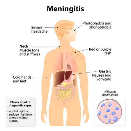 stiffness: Meningitis. Signs and symptoms. Human silhouette with internal organs. Illustration