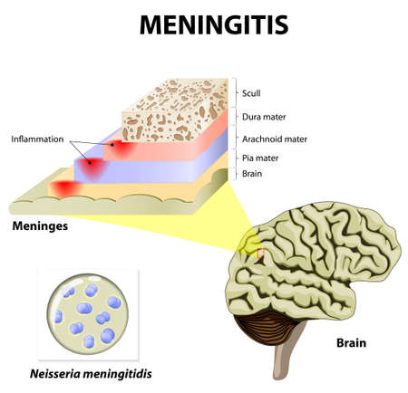 human anatomy: Meningitis. Human brain and meningococcal bacteria. Meninges of the central nervous system: dura mater, arachnoid, and pia mater Illustration