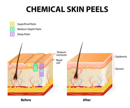 epidermis: chemical peeling or procedure chemexfoliation. Human skin layers Illustration