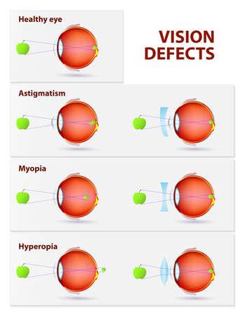 miopia: Disturbi della vista. Astigmatismo, miopia e ipermetropia Vettoriali