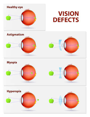 long sightedness: Vision disorders. Astigmatism, Myopia and Hyperopia
